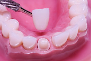 dental crowns in spring branch